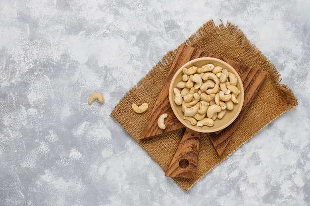 काजू खाने के फायदे- Benefits of Cashew in Hindi
