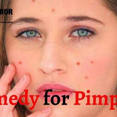 पिंपल हटाने के 20 घरेलू उपाय- How To Remove Pimples। ट्रीटमेंट, बचाव, डाइट