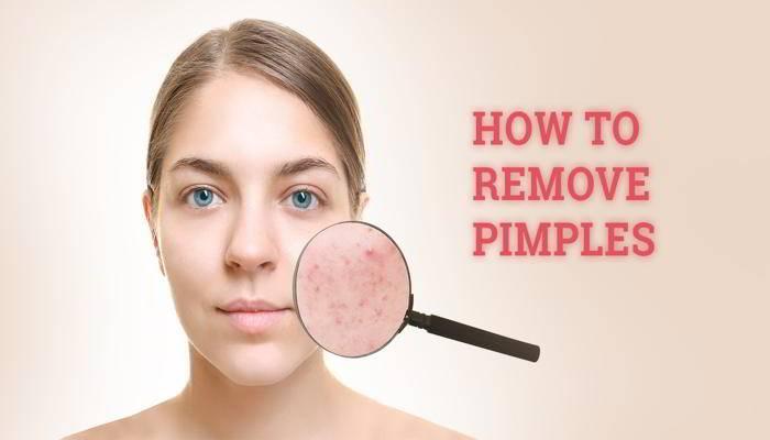 मुंहासों के लिए घरेलु उपाय - Home Remedies For Pimples in Hindi